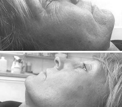 Profhilo résultats visage